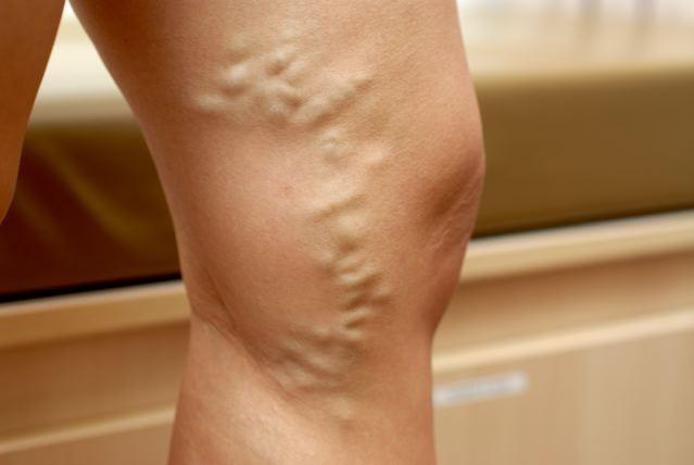 Методы диагностики заболеваний нижних конечностей