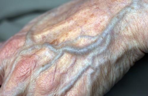 Тромбоз вен верхних конечностей лечение