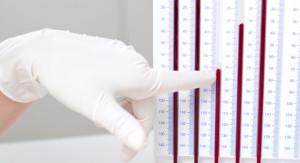 Анализ крови соэ 20