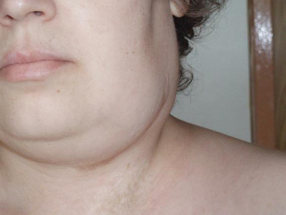Симптомы грудной жабы и лечение