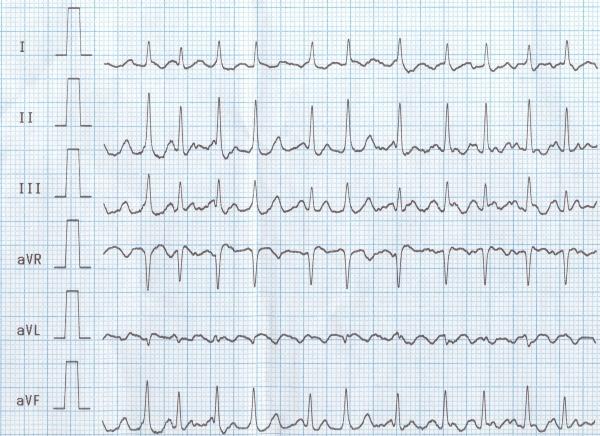 Мерцательная аритмия на ЭКГ: признаки, описание, заключение
