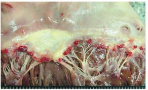 лечение эндокардита аортального клапана