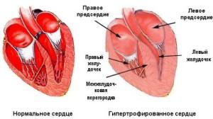 pochemu-poyavlyaetsya-av-blokada-serdca-i-lechenie (2)