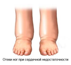 pochemu-poyavlyayutsya-oteki-pri-serdechnoj-nedostatochnosti (1)