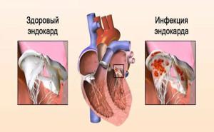 simptomy-i-lechenie-infekcionnogo-endokardita (2)