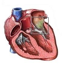 simptomy-i-lechenie-infekcionnogo-endokardita (3)
