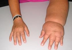 simptomy-i-lechenie-postinfarktnogo-kardioskleroza (1)