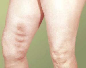 Чем отличается тромбоз от тромбофлебита