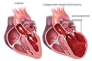 kak-lechitsya-diffuznyj-kardioskleroz1