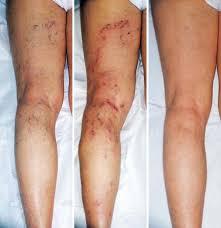 kak-provodyatsya-operacii-na-varikoznoe-rasshirenie-ven-na-nogax1
