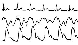 kak-pravilno-izmerit-apikalnyj-puls