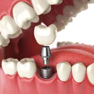 Для чего нужны зубные импланты и в чем особенность Nobel Biocare