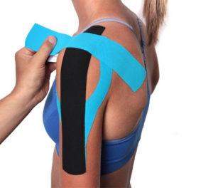 Что такое кинезиотейпирование плечевого сустава и когда оно необходимо
